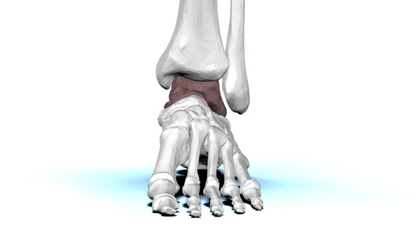 Chronic Ankle Sprain